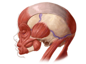 Comparison of Head Musculature in Normal and Trisomy 18 Cyclopia Human Fetuses