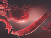 Sickle Cell Disease Detection