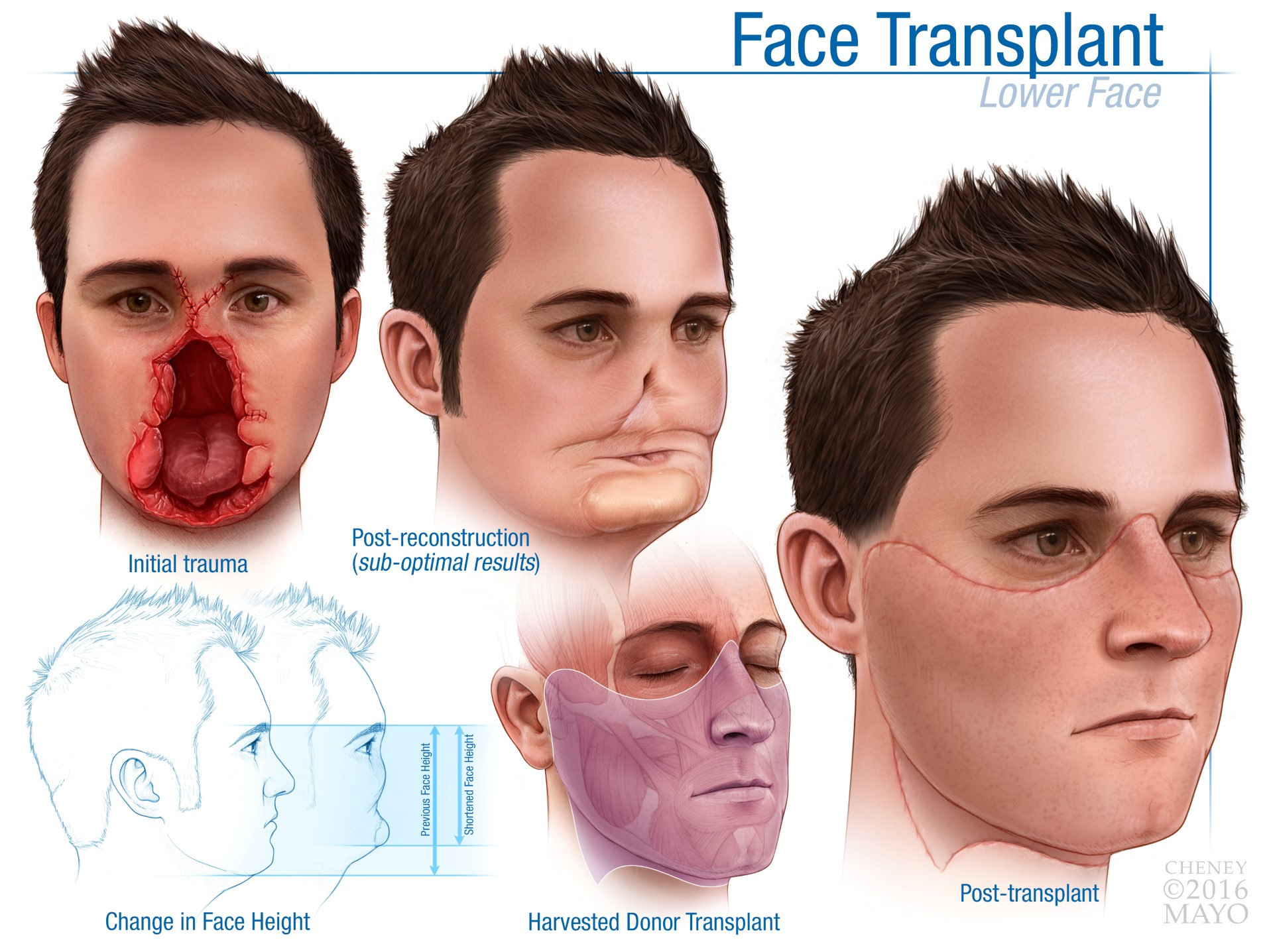 face transplants essay Pros and cons of liver transplant ethical issues regarding liver transplants revolves around would you choose to secure a liver transplant or face death as a.
