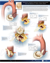 Minimally-invasive Modified Nicks Procedure for the Repair of a Small Aortic Root