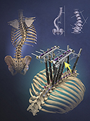 Spine Augmentation for  Treatment of Scoliosis